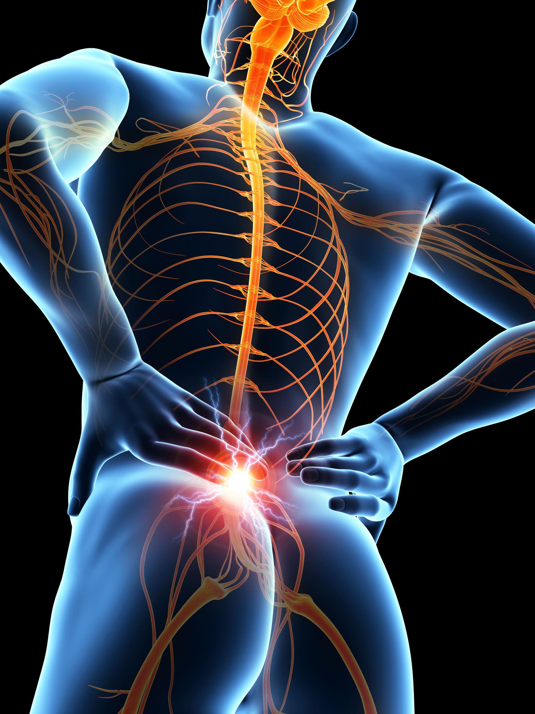 Afbeeldingsresultaat voor rugpijn en kleding